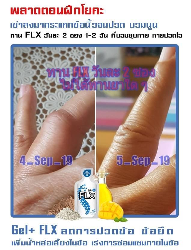ผลลัพธ์-3-FLX-ข้อต่อ-กระดูก-hrtexo.com