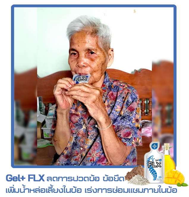 FLX-13-ข้อต่อ-กระดูก-hrtexo